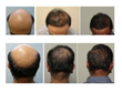 US PATENT Granted for UGraft Revolution(™) Tools System for Follicular Unit Extraction for Transplantation of Body-to-Scalp Hair and Curly African American-Type Hair