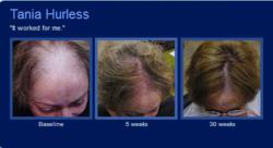 Scalpmed hairloss testimonial