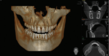 Cutting-Edge 3-D Technology at Midtown Dentistry Reduces Patient X-Ray...