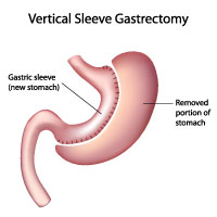 This is an illustration of a stomach to show sleeve gastrectomy.