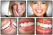 whitening teeth secrets review