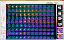 Cardiac imaging decision support software