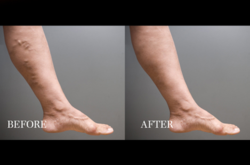 sclerotherapy, vein disease, Dr. Andrew Rochman