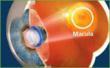 Telescopic Implant