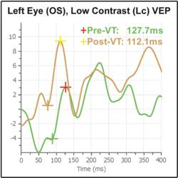 Athlete's VEP Results Pre- and Post VT