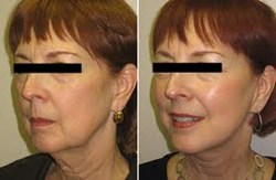 fat transfer to face, autologous fat transfer to face, facial fillers, juvaderm, restylane,