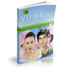 treatment for vitiligo review