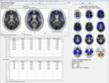 PET brain scan interpretation