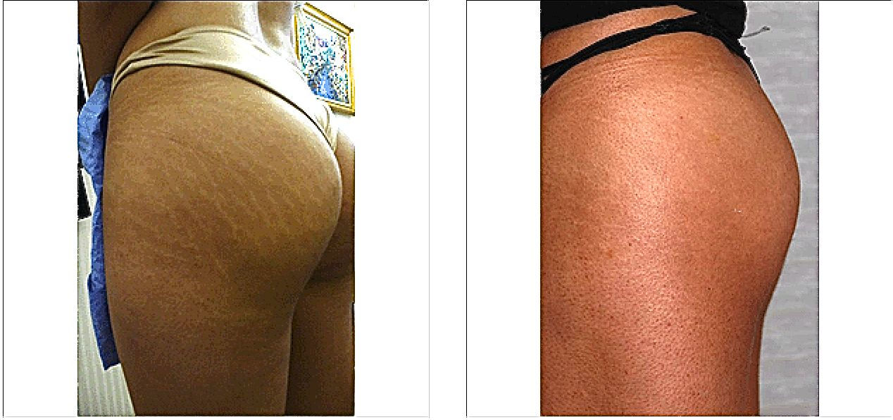 Stretch Marks Before And After Carboxytherapy Stretch Marks Before And After
