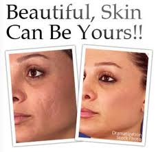 Revitol Scar Removal Cream Now Comes With Most Powerful