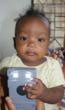 Most children under 1 year old do not survive kerosene burns