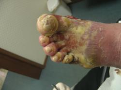 Foot health, Foot Health treatment, NYCVA
