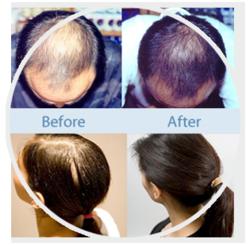 Provillus Hair Regrowth Treatment