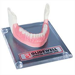Small Diameter Inclusive Dental Implants