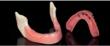 Inclusive Mini Dental Implants