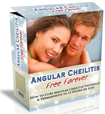 angular cheilitis treatment review