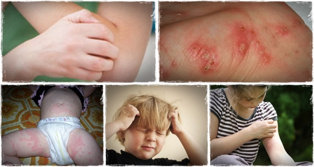 how to get rid of scabies naturally