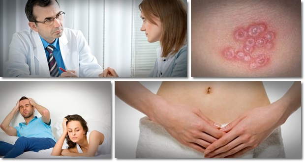 Get rid of herpes now blogspot search