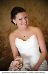 A white wedding smile designed by an AACD dentist.