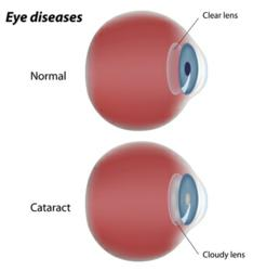 Cataracts, Cataract Surgery