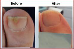 Results of toenail fungus laser treatment