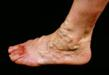 Foot Health, Bulging Vein Problems, Chuback Medical Group