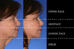 Example photo of custom facelift division (Orange County Patient Example)