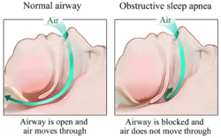 Sleep Apnea, Obstructive sleep apnea, NYCVA New York NY