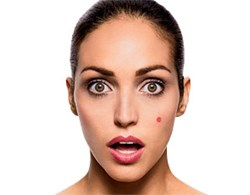 Tackle adult acne internally, topically, and emotionally taking care of yourself