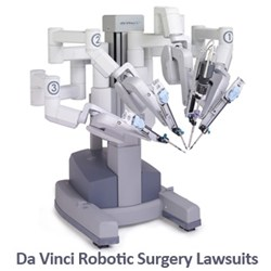 If you or a loved one has been injured by a Da Vinci Robot Surgery contact Wright & Schulte LLC, a leading medical device injury law firm today at 1-888-365-2602 or visit www.yourlegalhelp.com