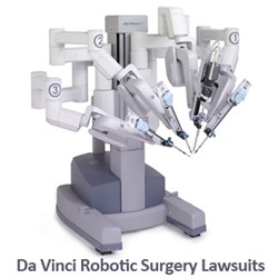 If you would like more information on filing a Da Vinci Robotic Surgery lawsuit contact Wright & Schulte LLC for a FREE case evaluation at yourlegalhelp.com or 1-800-395-0795
