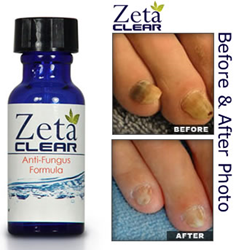 Zetaclear Offers Extra Bottles Of Zetaclear Toenail Fungus