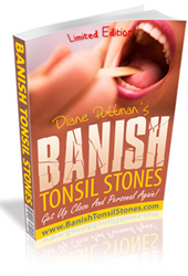 how to get rid of tonsil stones review