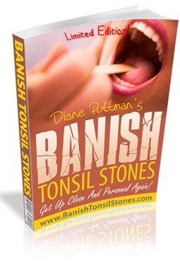 how to get rids of tonsil stones