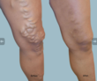 EVLT, Endovenous Laser Ablation, Varicose Vein Treatment