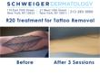 R20 Laser Tattoo Removal