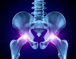 Hip Replacement: serious complications
