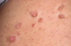 Image result for skin tag cream
