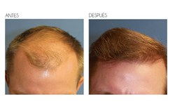 Before and after hair transplant results at Beverly Hills Hair Restoration