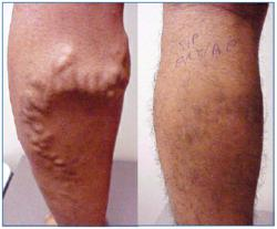 Vein Disease, New York Cardiovascular Associates, bulging vein problems
