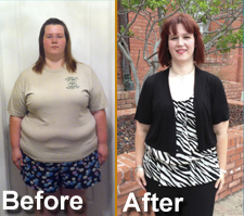 Bariatric Surgery San Antonio Success Story for TBS