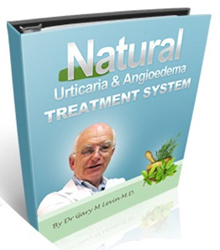 treatment for hives review