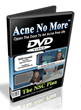 Acne No More videos