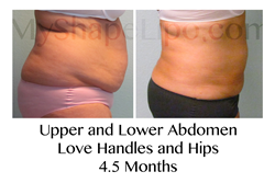 liposuction, smart lipo, liposuction of the abdomen, myshape lipo, trevor schmidt