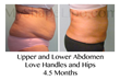 MyShape Lipo Saves One Woman's Life with Large Volume Liposuction