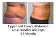 liposuction, smart lipo, liposuction of the abdomen, myshape lipo, trevor schmidt