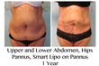 liposuction, large volume liposuction, weight loss, abdominal liposuction, my shape lipo,