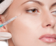 Younger Patients Seeking Facial Rejuvenation: Survey