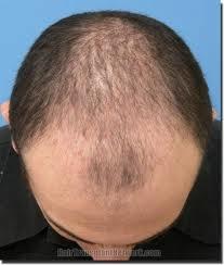 hair loss in a man