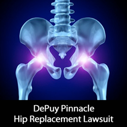 DePuy Pinnacle Lawsuit